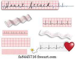 picture about Printable Ekg Strips identified as No cost artwork print of Uncommon EKG