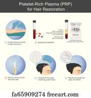 Free art print of PRP therapy for hair loss
